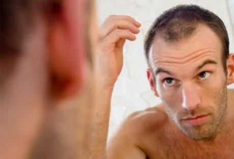 caida-del-cabello-causas-comunes