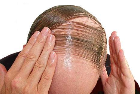 Tipos de caida de cabello sintomas y remedios naturales