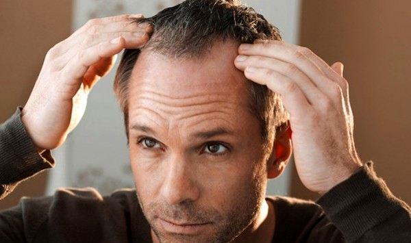 tratamiento-para-la-caida-del-cabello-en-hombres-y-mujeres