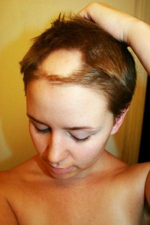 Alopecia-Areata-Causas-Sintomas-Tratamiento-Y-Prevencion