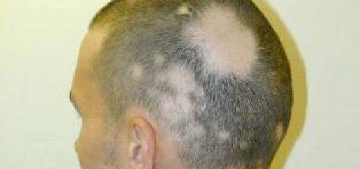 Alopecia Areata, Causas, Sintomas, Tratamiento Y Prevencion