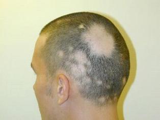 alopecia-areata-Tratamiento-causas
