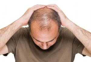 puede-la-caida-del-cabello-ser-causada-por-una-deficiencia-de-hierro