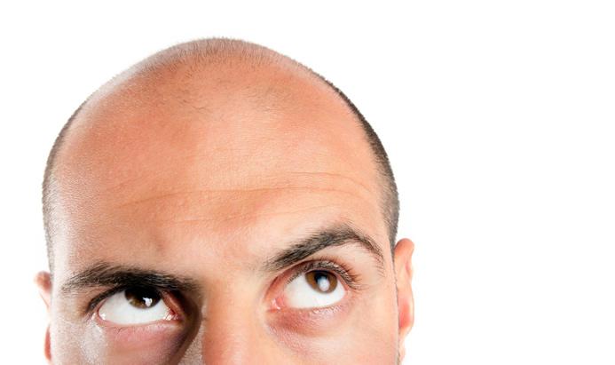 9 pasos para restaurar los folículos pilosos dañados del cabello